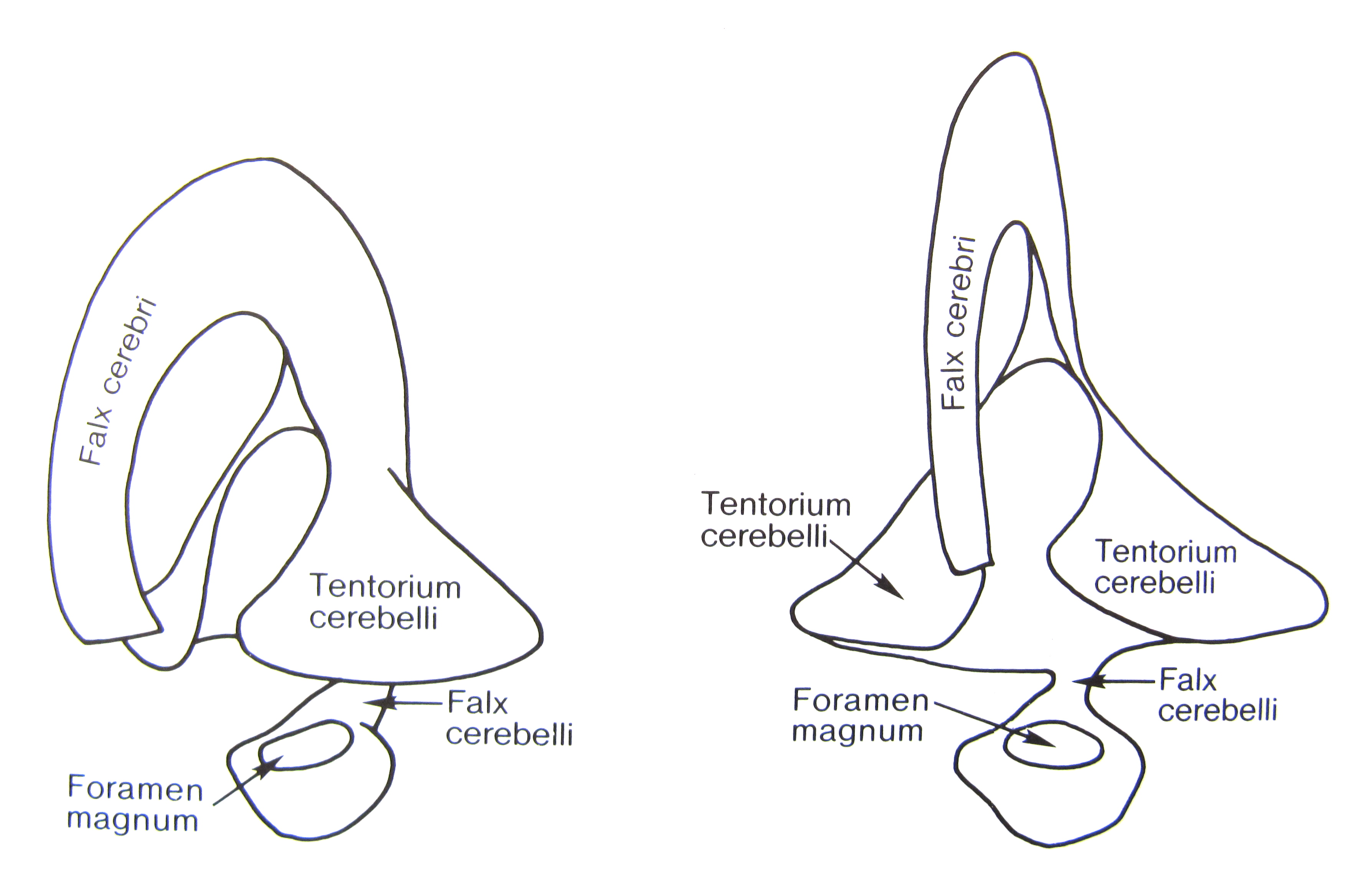 Dural Folds
