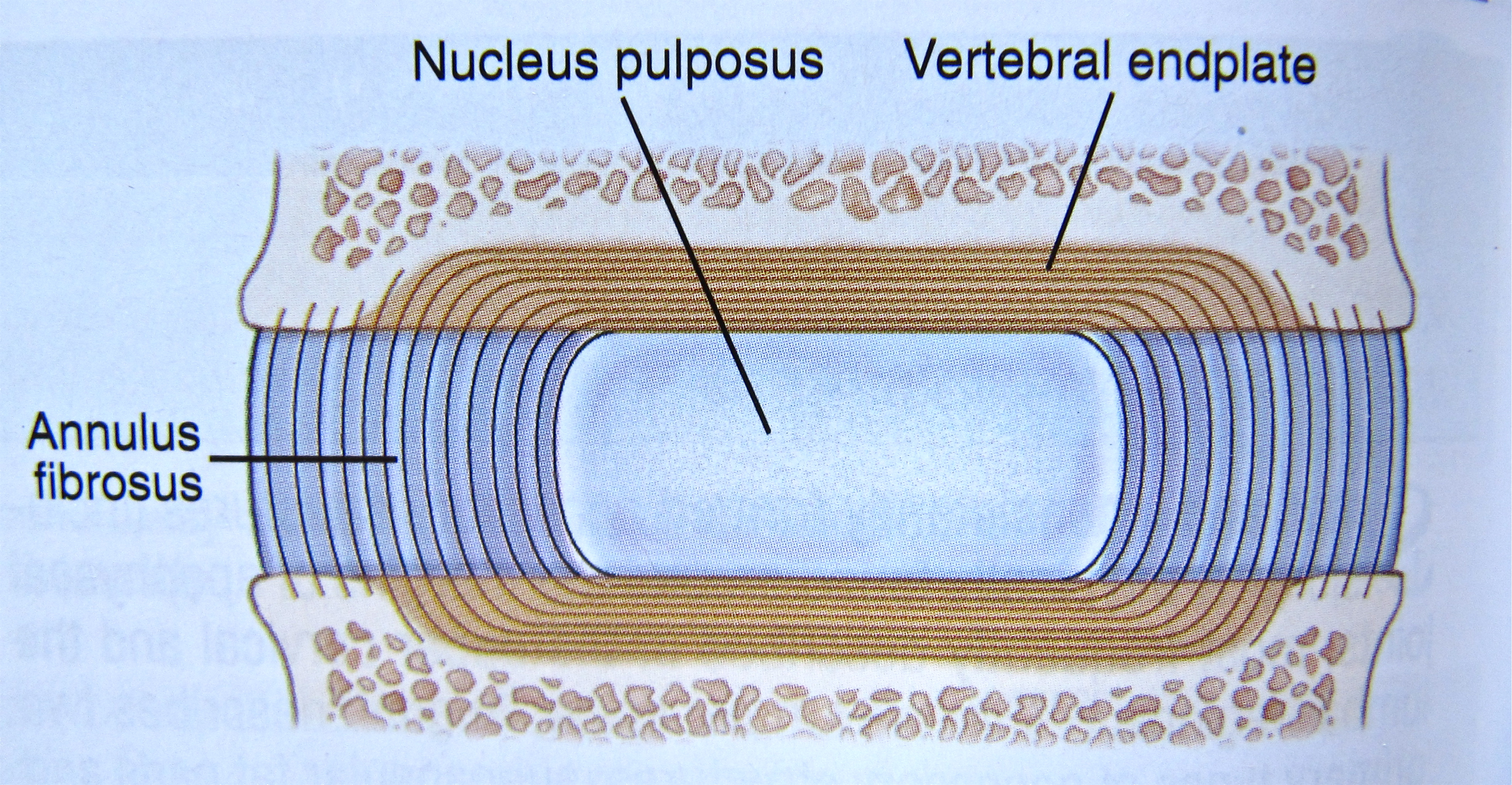 Notes on Anatomy and Physiology: The Intervertebral Discs |