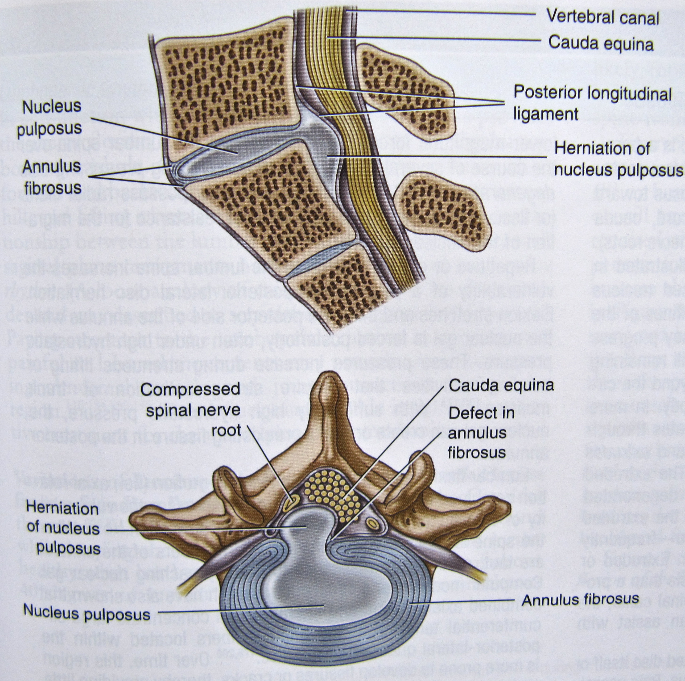 Notes on Anatomy and Physiology: Degenerative Disc Disease |